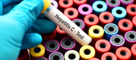Hepatis C
